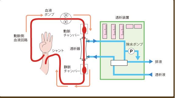 血液透析(HD)とは