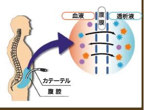 連続携行式腹膜透析( C A P D )とは